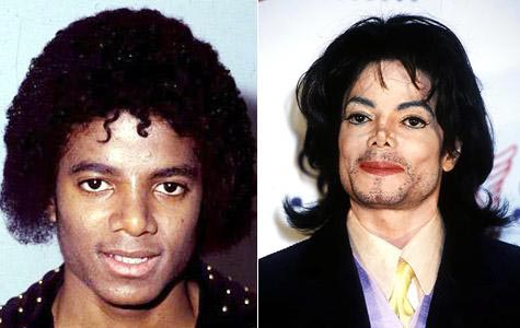 Michael Jackson, Jacko, Cosmetic Surgery